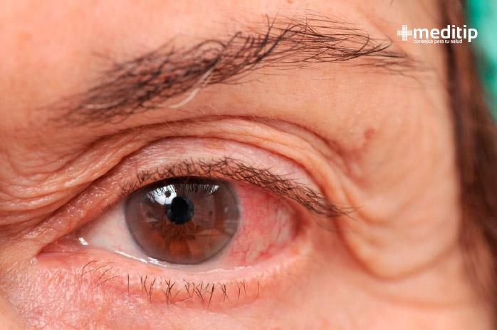 Problemas y enfermedades oculares más comunes: glaucoma