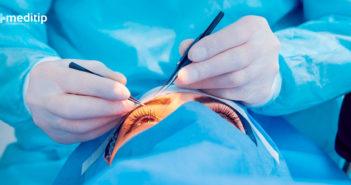 Complicaciones del glaucoma: medicación y cirugía