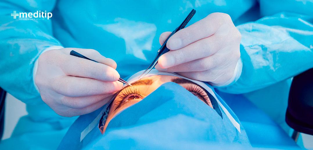 Complicaciones del glaucoma: trabeculectomía