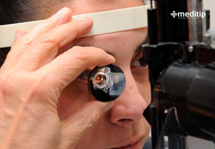 Pruebas de detección de glaucoma: gonioscopia