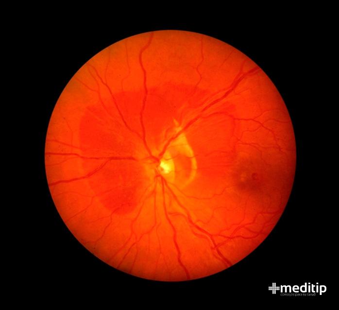 Complicaciones del glaucoma: hemorragia coroidea