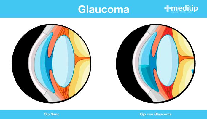 Tratamiento del glaucoma: ilustración de ojo sano y ojo con glaucoma