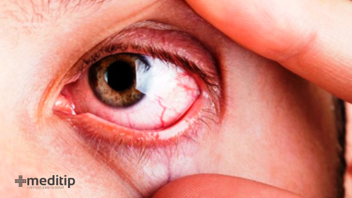 Complicaciones del glaucoma: infección de ojo postoperatoria