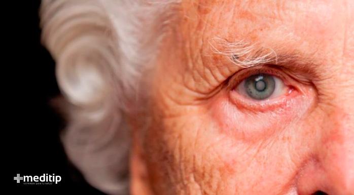 Evolución de las cataratas: mujer mayor con catarata en ojo derecho