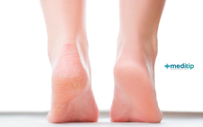 Signos tempranos de mala circulación: pies resecos