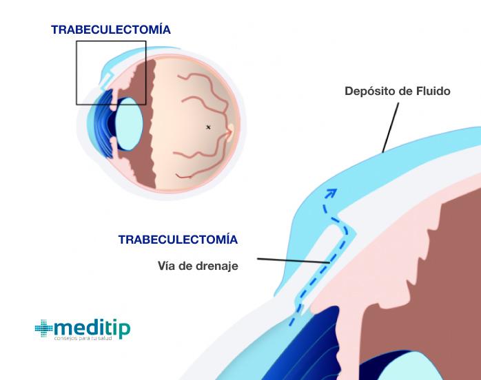 Complicaciones del glaucoma: ilustración de una trabeculectomía