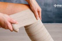 Qué es una úlcera venosa: diagnóstico y tratamiento