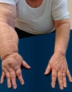 Causas del linfedema y tratamiento, hinchazón en el brazo