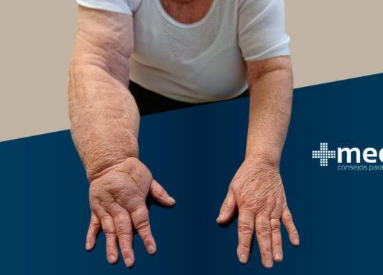 Linfedema: definición, causas y tratamiento