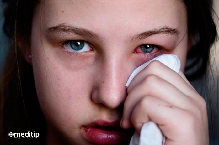 Problemas y enfermedades oculares más comunes: conjuntivitis