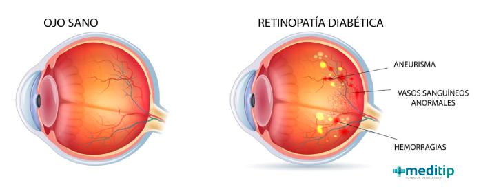 Daño en los ojos por diabetes: ilustración de la retinopatía diabética