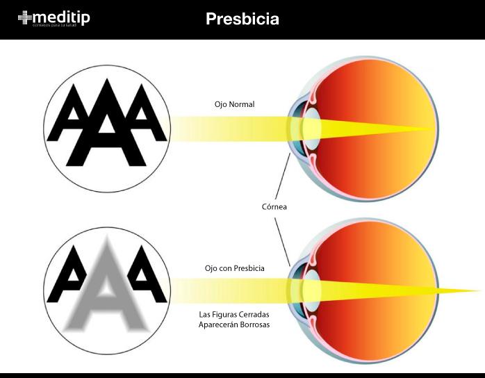 Tratamiento de la presbicia: ojo normal y ojo con presbicia