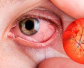 Retinopatía diabética: el daño en los ojos por diabetes