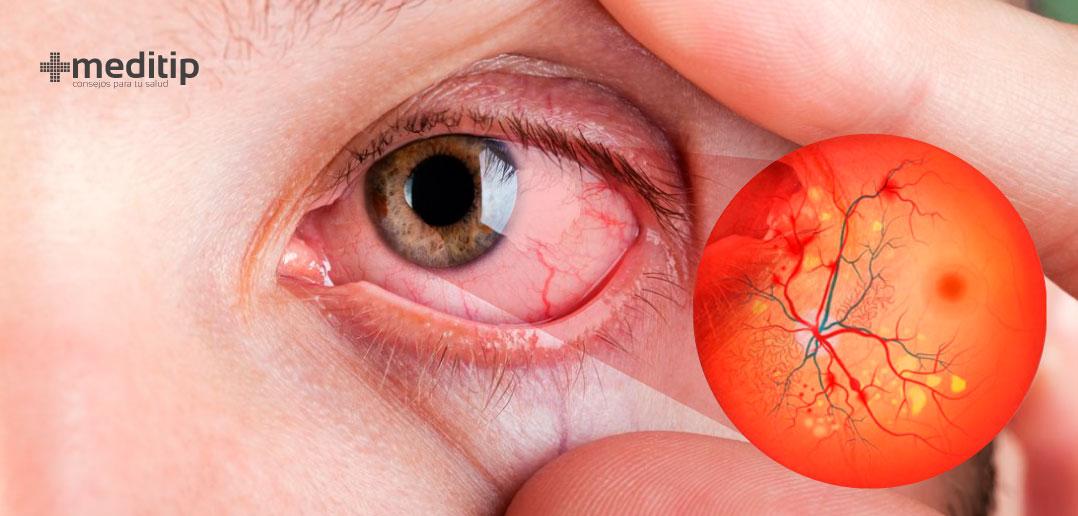 Enfermedad ocular por diabetes: qué es la retinopatía diabética