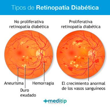 Tipos de retinopatía diabética: etapas de la retinopatía diabética y el daño en los ojos por diabetes