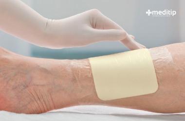 Valoración de una herida: apósito hidrocoloide
