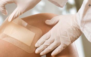 Desbridamiento y uso de apósitos para el manejo de la biopelícula en heridas