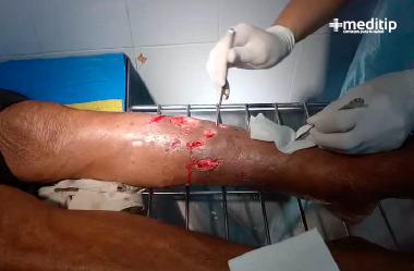 Desbridamiento quirúrgico