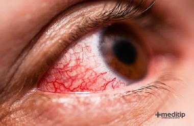 Causas de los ojos rojos: Epiescleritis