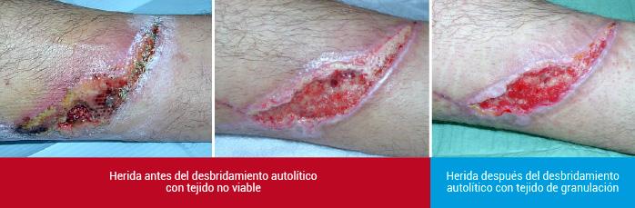 Desbridamiento autolítico: herida antes y después del desbridamiento autolítico