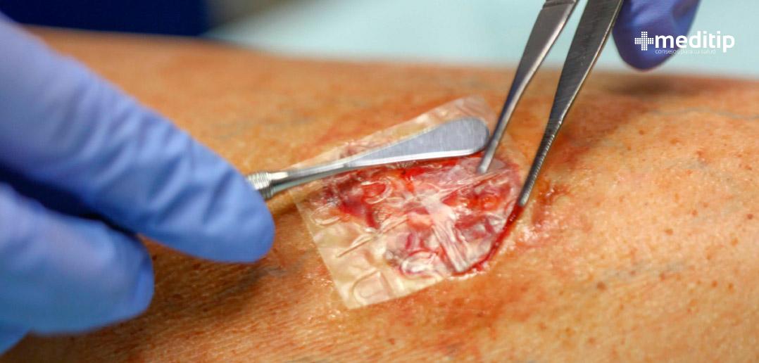 Exudado: el líquido de las heridas