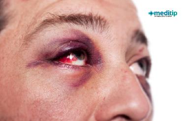 Causas de los ojos rojos: enrojecimiento por lesión en el ojo