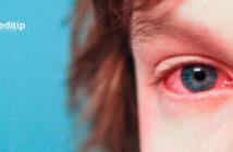 Tratamiento de la conjuntivitis: niño con conjuntivitis