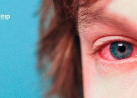 Conjuntivitis: causas, tipos y tratamiento de la inflamación de la conjuntiva