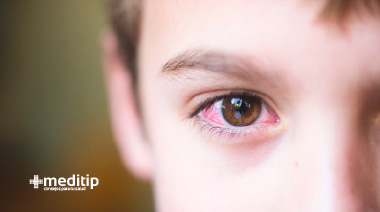 Niño con ojos rojos e irritados: por qué se ponen los ojos rojos