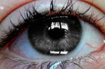 Causas de los ojos llorosos y el lagrimeo continuo