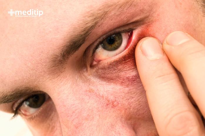 Causas de los ojos rojos: ojos rojos y secos
