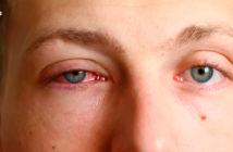 Causas de los ojos rojos: ojo rojo e irritado