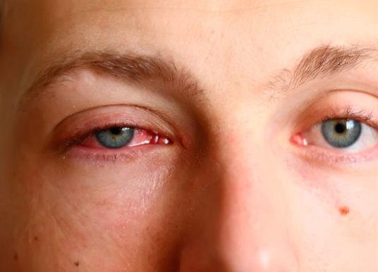 Causas de los ojos rojos e irritados y cuándo buscar atención médica