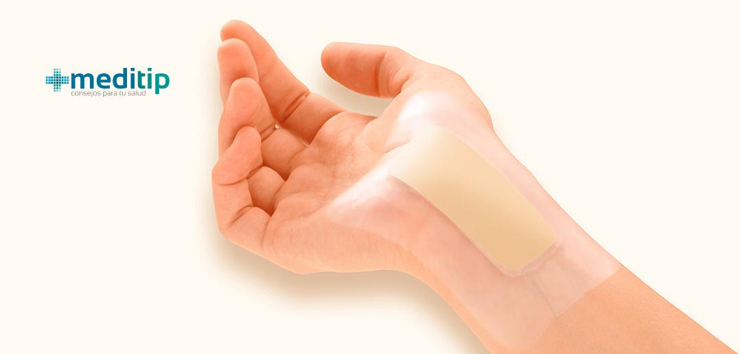 valoración de una herida: herida en la palma de la mano