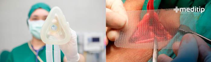 Anestesia en cirugía de hernia y malla quirúrgica de prolene