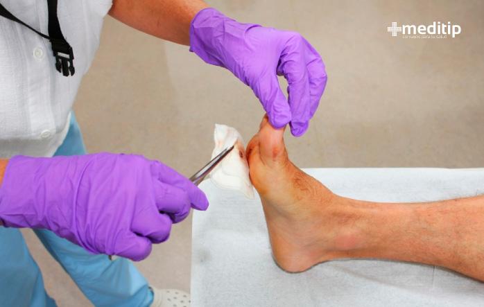 Biopelícula en heridas: un factor que retrasa la curación
