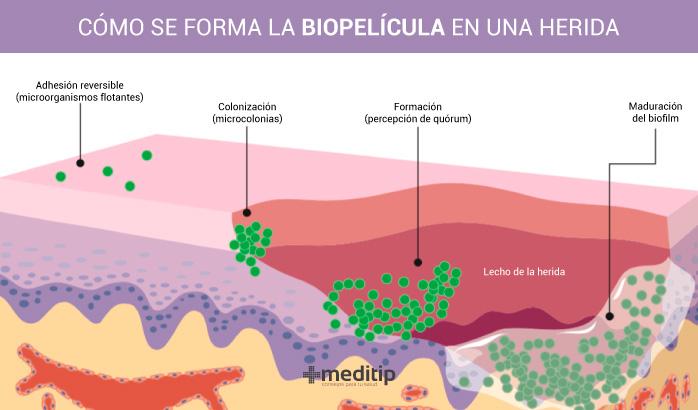 Biofilm en heridas: cómo se forma la biopelícula en una herida