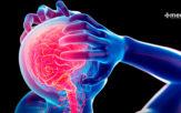 Causas de la epilepsia: tipos de crisis epilépticas