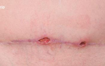 Dehiscencia de heridas: abertura de incisión o herida quirúrgica