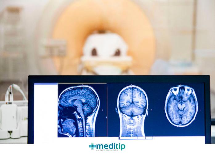 Diagnóstico de la epilepsia: resonancia magnética del cerebro después de una convulsión
