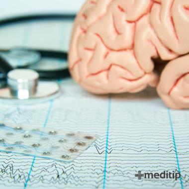 Diagnóstico de la epilepsia: electrodo y ondas cerebrales