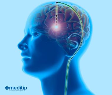 Tratamiento de la epilepsia: estimulación cerebral profunda