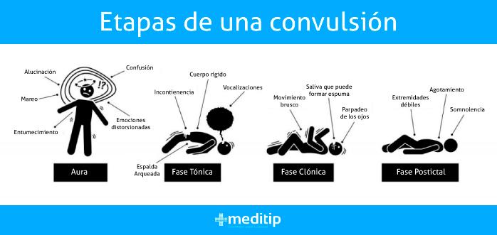 Etapas de una convulsión: fases de una convulsión debido a epilepsia