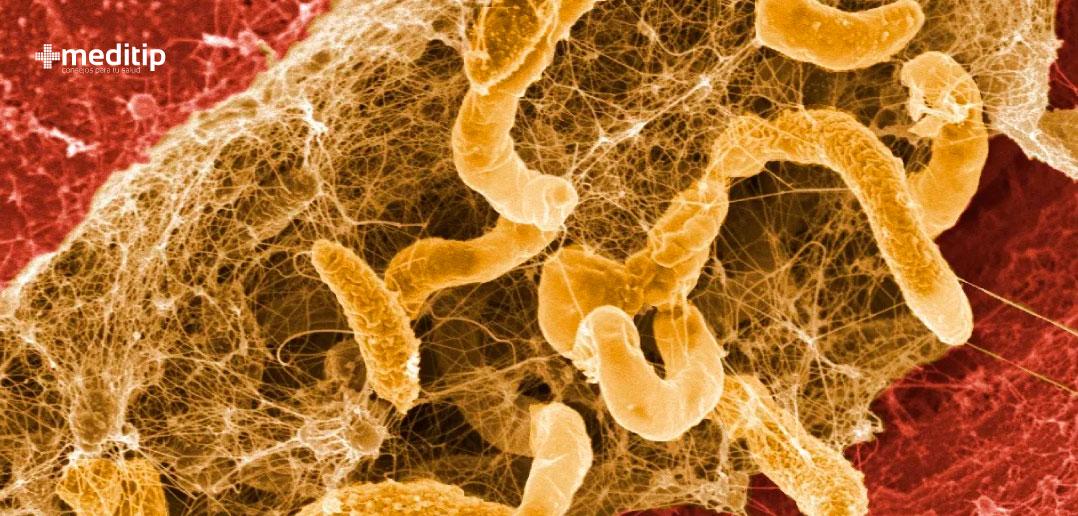 Biopelícula en heridas: manejo del biofilm en heridas