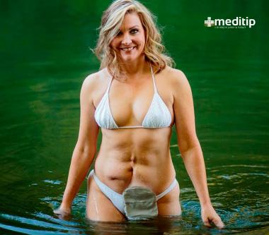 Se puede mojar la bolsa de ostomía: mujer ostomizada en el mar