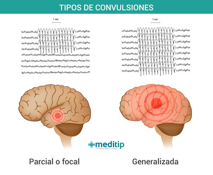 Causas de la epilepsia: tipos de convulsiones debido a epilepsia: crisis epiléptica focal y crisis epiléptica generalizada