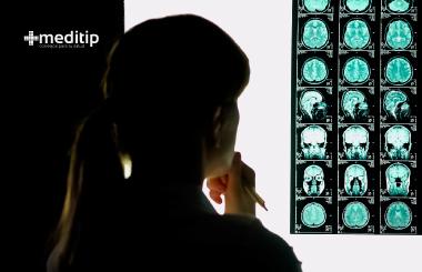 El trauma cerebral es una de las lesiones en adultos mayores más frecuente debido a una caída
