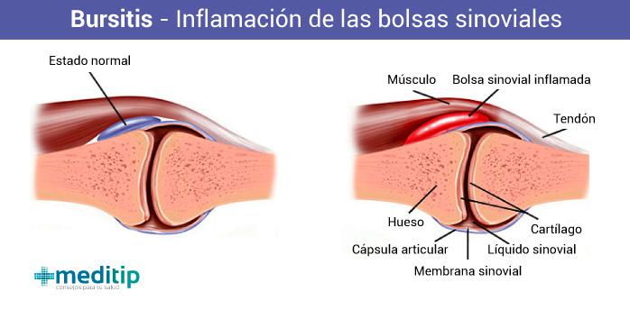 Lesiones de tejidos blandos por uso excesivo: bursitis