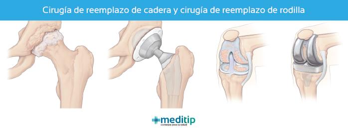 Cirugías de ortopedia más comunes: prótesis de cadera y prótesis de rodilla