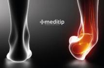 Tratamiento de un esguince: esguince de tobillo